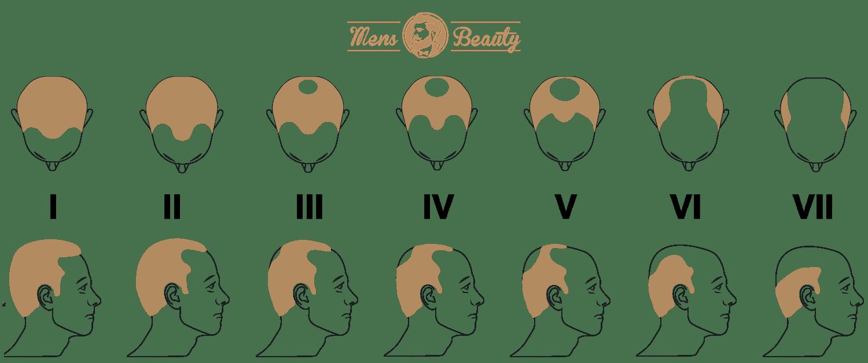 escala alopecia androgenetica hamilton norwood