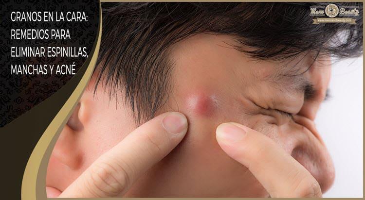 como quitar granos espinillas cara combatir acne