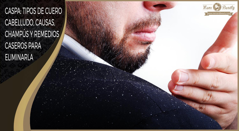 caspa descamacion cuero cabelludo causas champu anticaspa remedios naturales