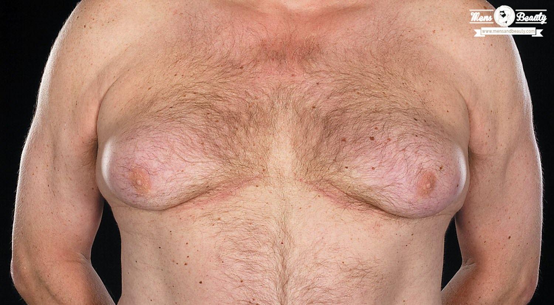 ginecomastia pecho excesivo hombre causas
