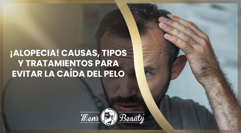 alopecia calvicie caida de pelo hombres que es causas tratamientos