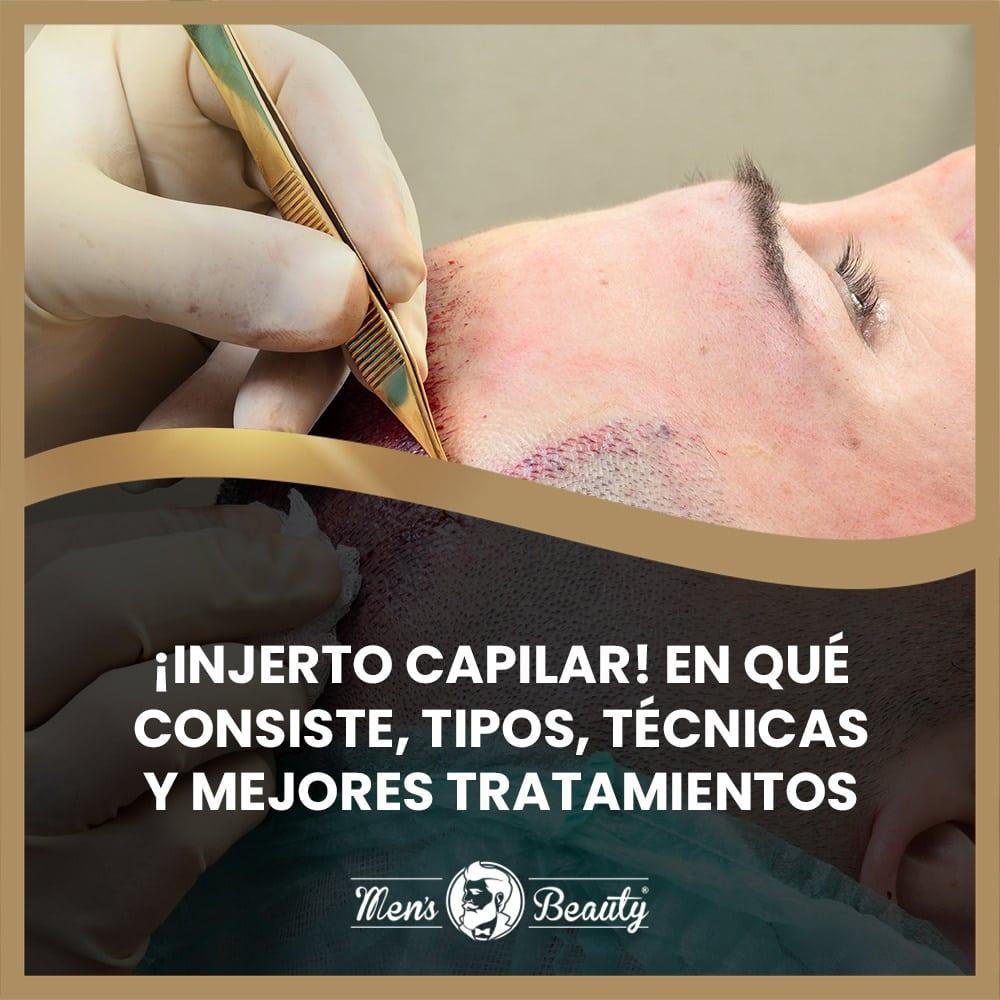 injerto capilar pelo hombre que es procedimientos tecnicas ventajas inconvenientes tratamientos alternativos