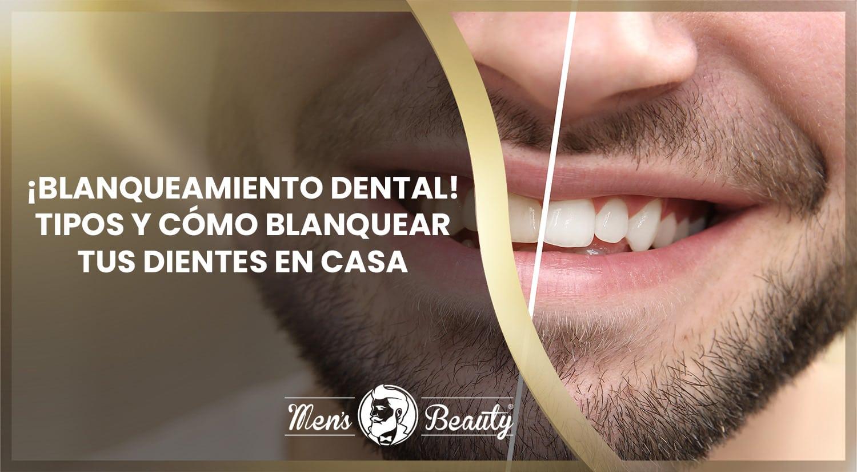 Mejores productos para blanquear los dientes
